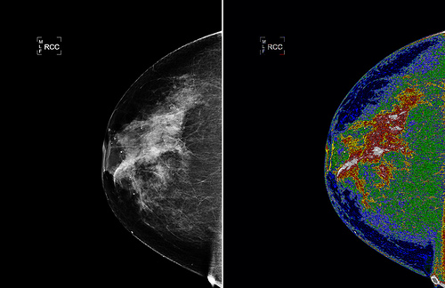 cancer screening breast exams